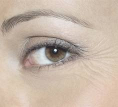 Anti Eye wrinkle Home Remedies