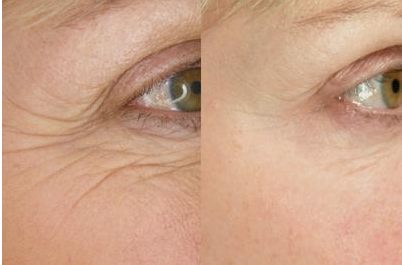 Anti-Eye-wrinkle-Home-Remedies