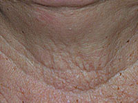 Anti wrinkle Neck Skin Care Recipes