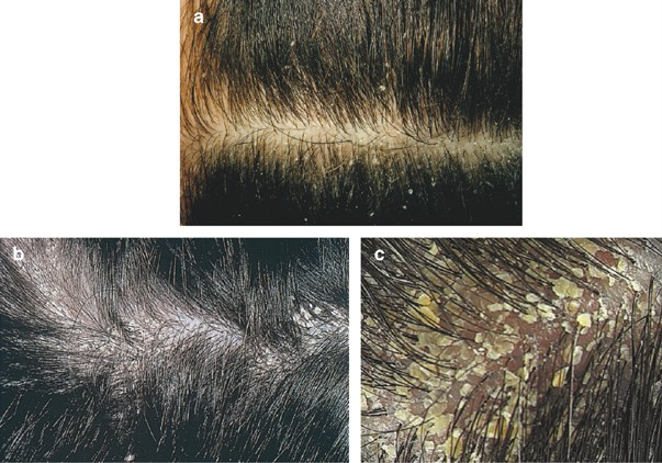 Dandruff hair loss Homemade Remedies  to how to get rid of dandruff