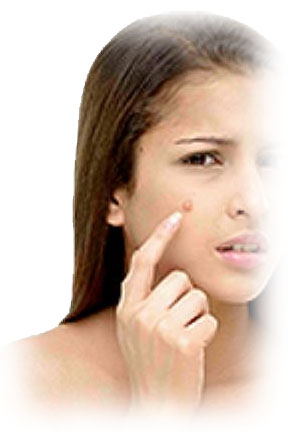 Home Remedies of Acne, Pimples