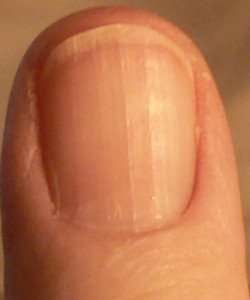 Tips On Fingernail Ridges