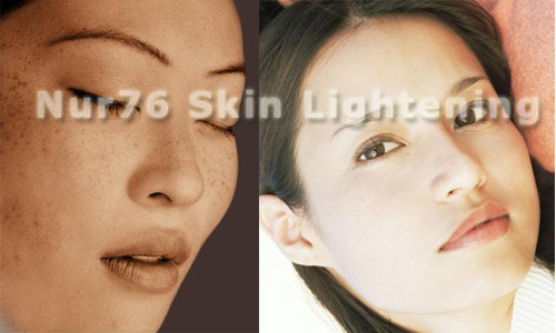 Skin Whitening  Treatment For Sun Spot